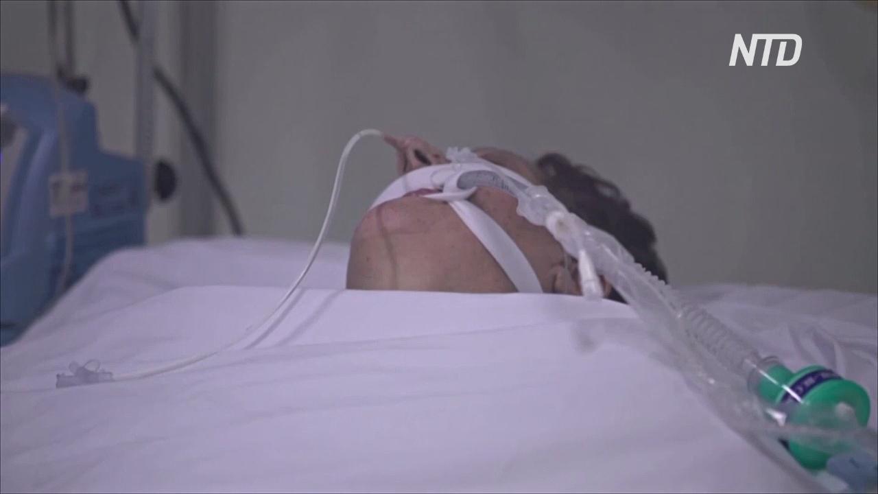 Учёные в США: у трети пациентов с COVID-19 была почечная недостаточность