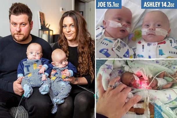Новорождённые близнецы размером с ладонь выжили