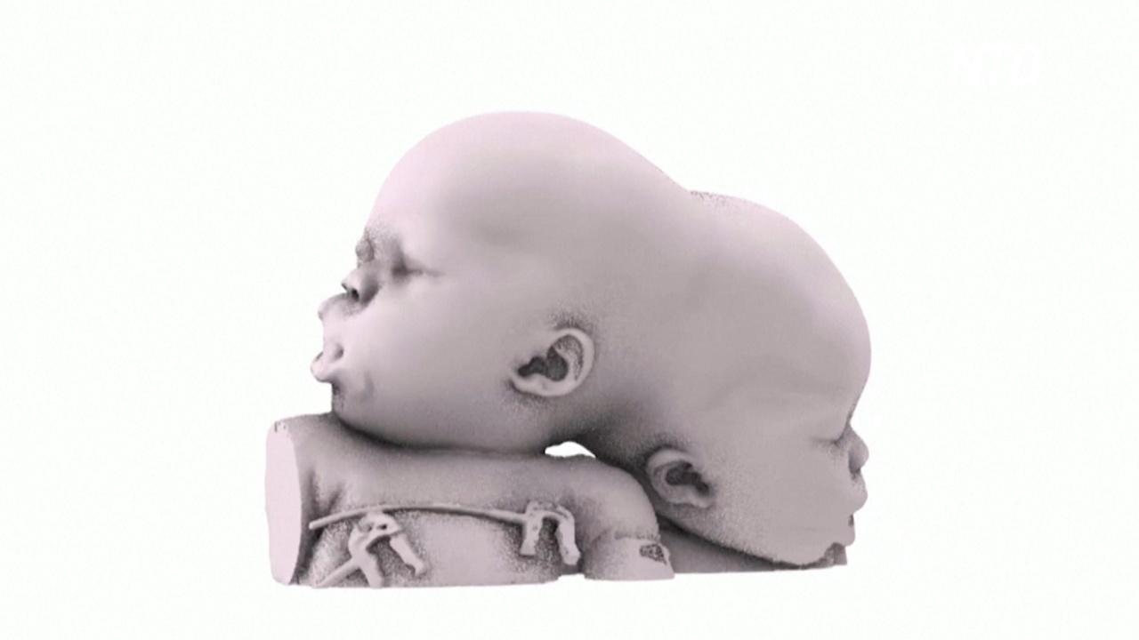 В Италии успешно разделили сиамских близнецов со сложной формой срастания