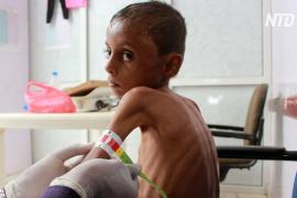 Недоедающим йеменским детям угрожает голод