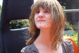 Девушка с коричневыми пятнами на коже стала моделью