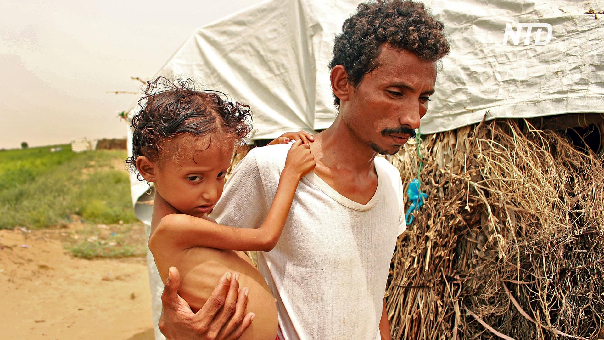 ООН: уровень недоедания среди детей в Йемене достиг рекордной отметки