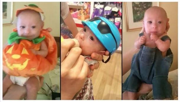Новорождённому, который весил 450 г, исполнилось три года