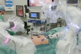1000 операций робота-хирурга Versius: без разрезов и осложнений