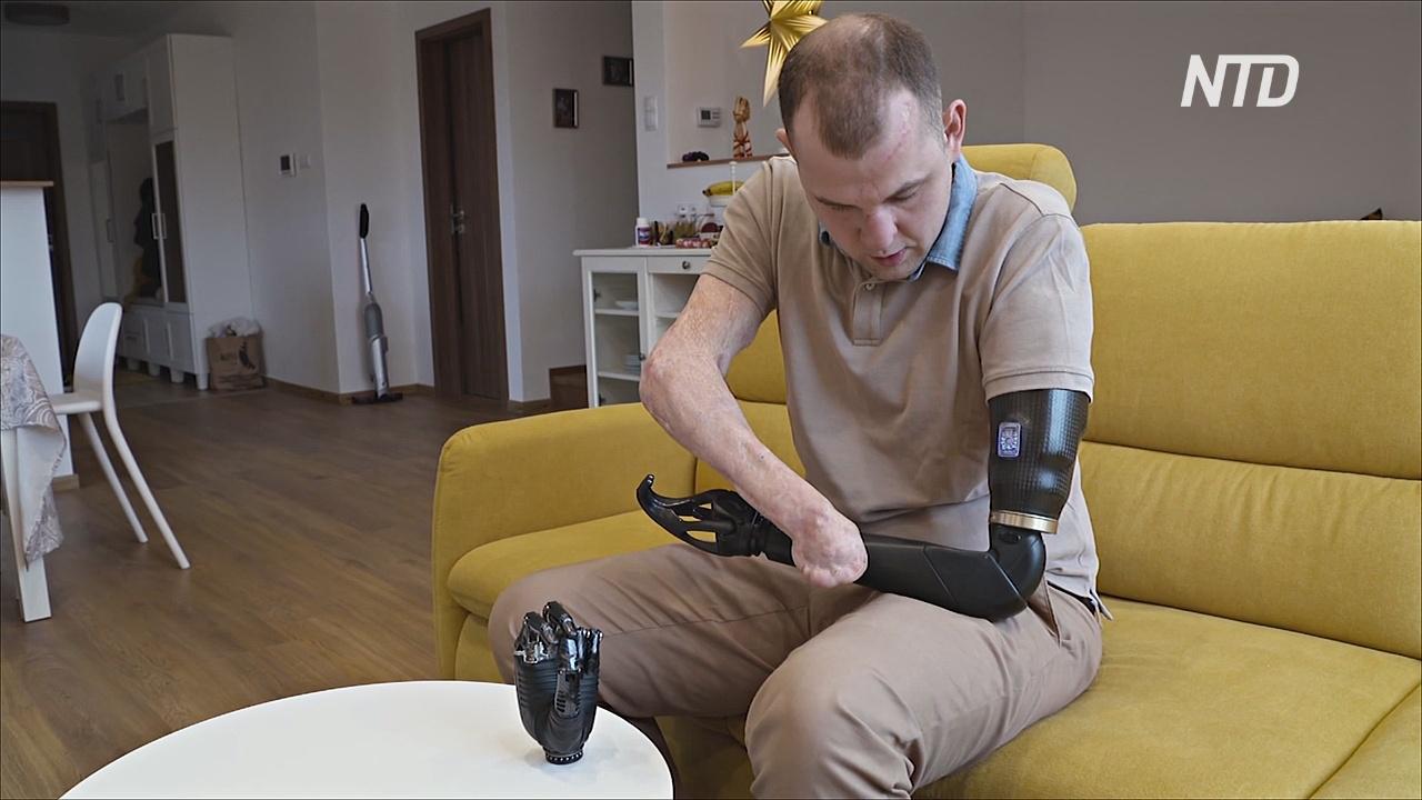 Инженер без рук пытается создать «умные» протезы