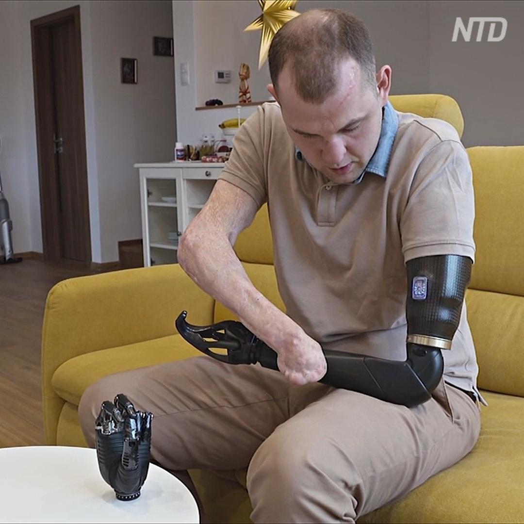 Инженер без рук разрабатывает протезы с искусственным интеллектом