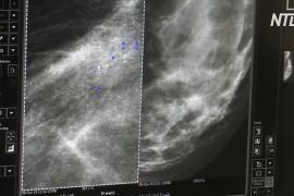 ВОЗ: рак груди обогнал рак лёгких как наиболее частую форму рака в мире