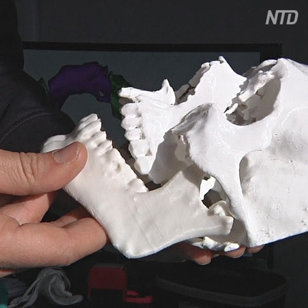 Пострадавшему итальянцу лицо «напечатали» на 3D-принтере