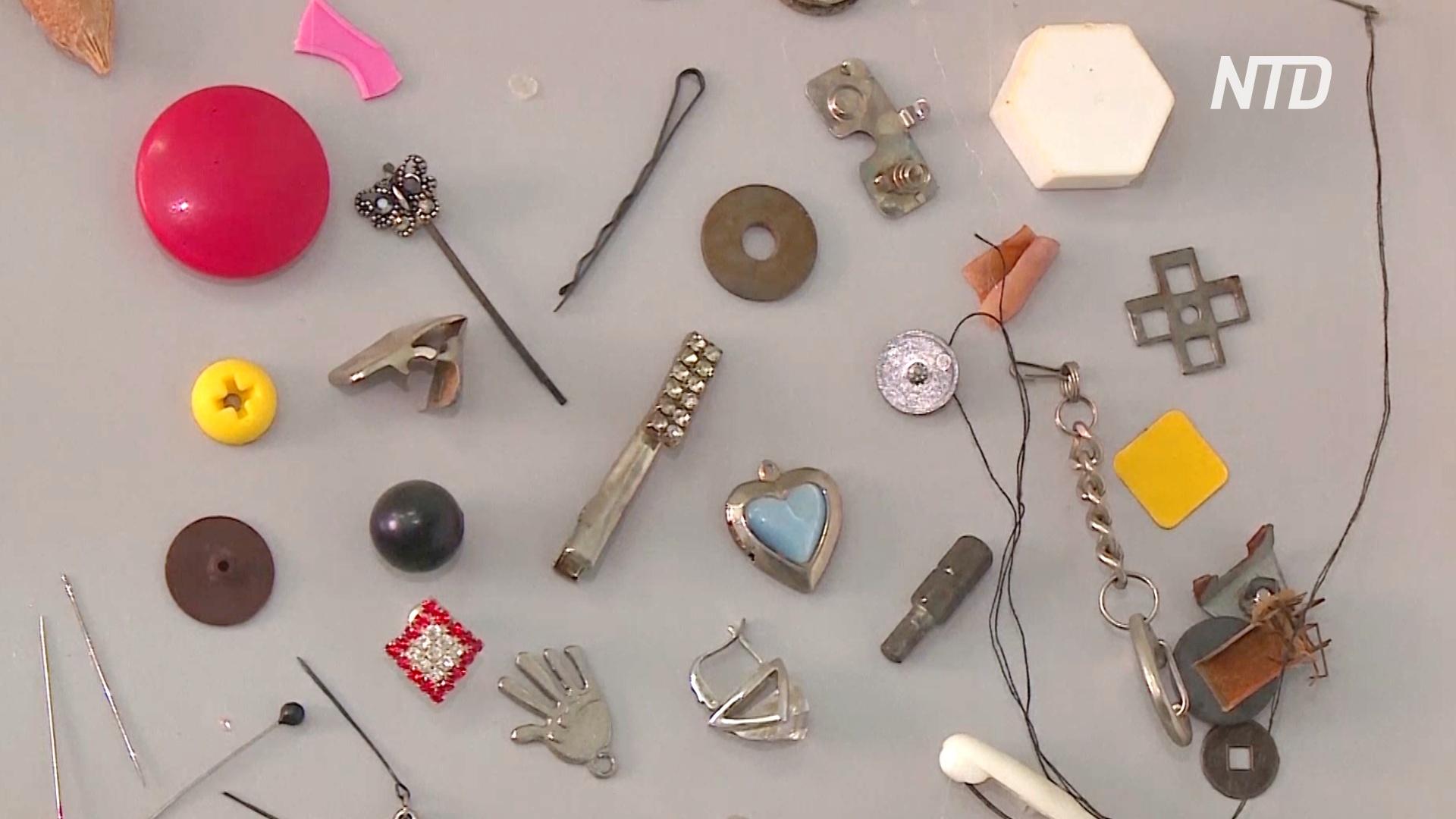 Булавки, магниты и кости: кемеровские врачи собирают предметы, проглоченные детьми