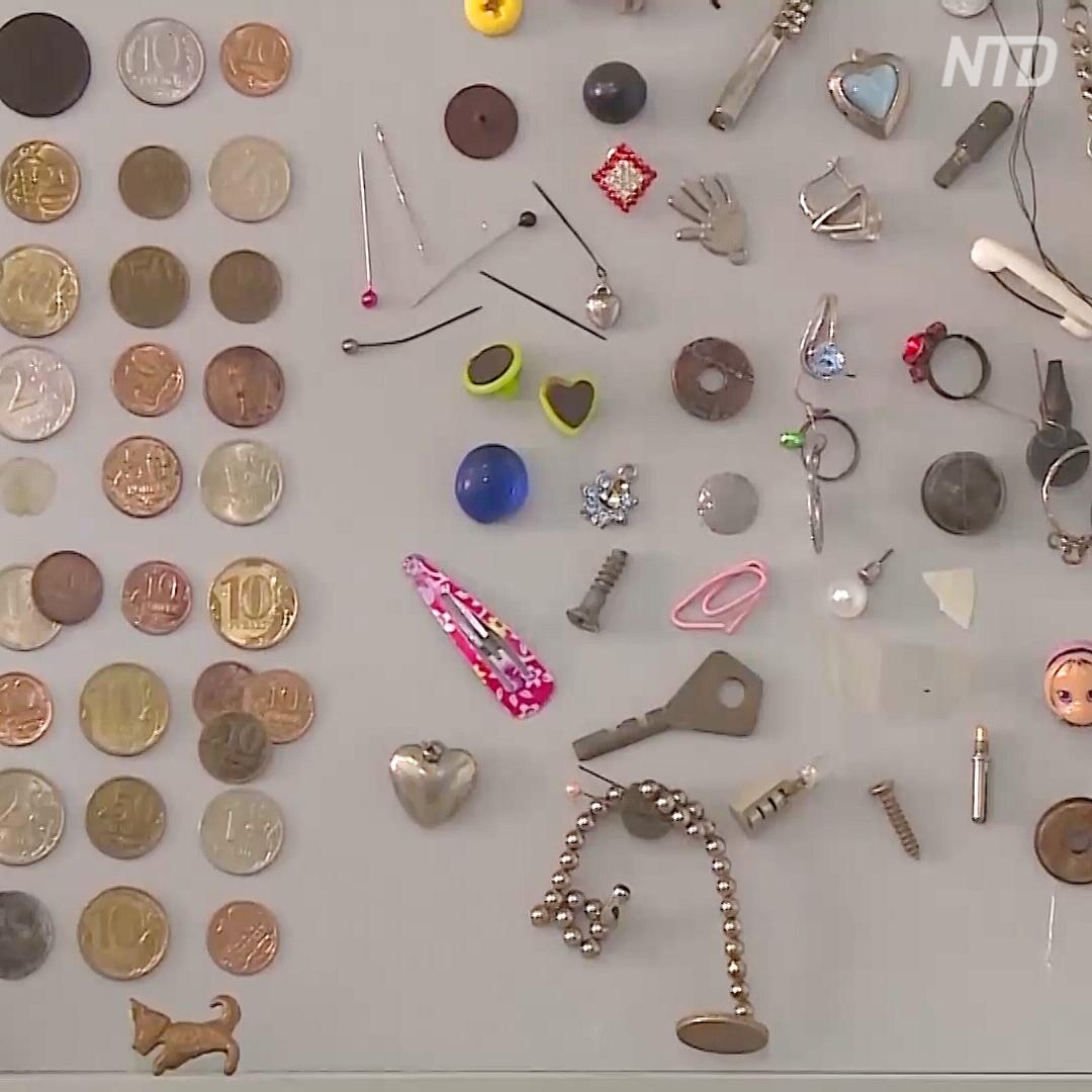 Предметы, которые проглотили дети: коллекция врачей из Кемерово