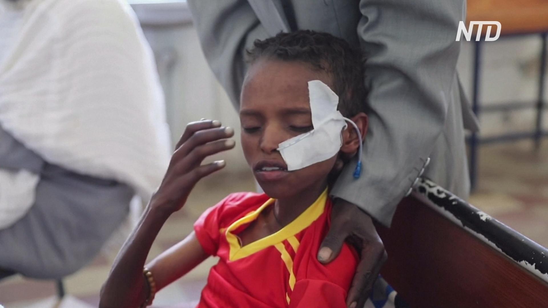 ООН: 350 тысяч жителей эфиопского региона Тыграй голодают из-за вооружённого конфликта