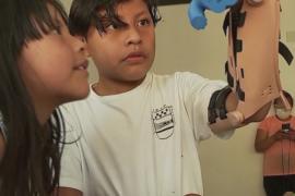 3D-печатные протезы рук делает испанский изобретатель