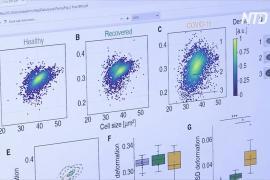 Исследование: короновирусная инфекция вызывает долгосрочные изменения в клетках крови