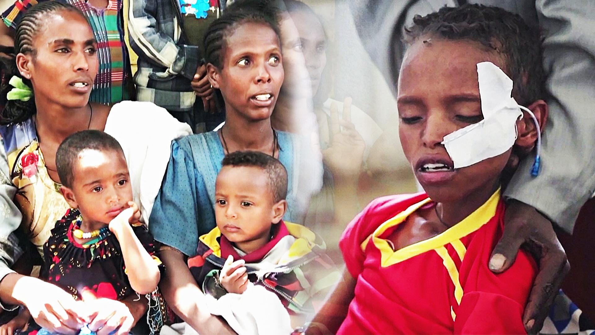 ООН: 100 000 детей могут умереть от голода в эфиопском регионе Тыграй