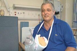 В Великобритании впервые пересадили руку