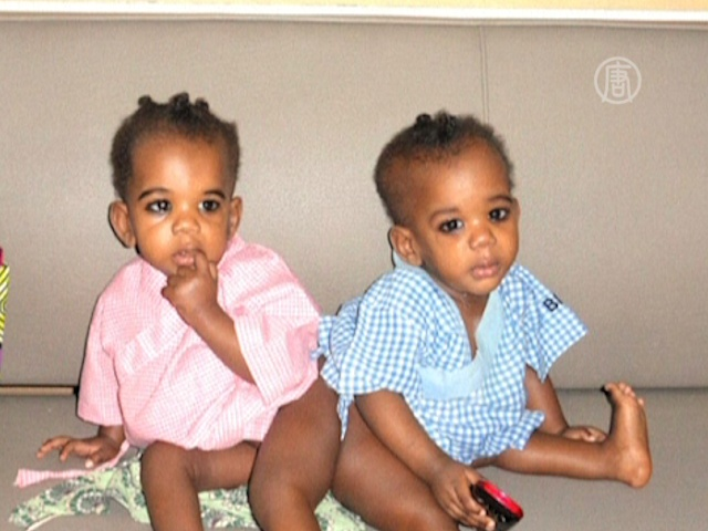Сиамских близнецов из Африки разделили в Индии