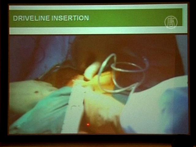 Индия: первая операция по вживлению насоса сердца