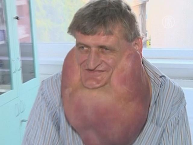 Мужчине удалили опухоль с лица весом в 6 кг