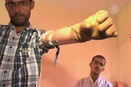 Афганцев снабжают бесплатными протезами