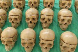 Синтетические кости уже 19 лет делают в Мексике
