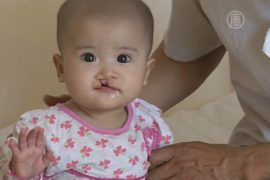 Детям с «заячьей губой» делают бесплатные операции