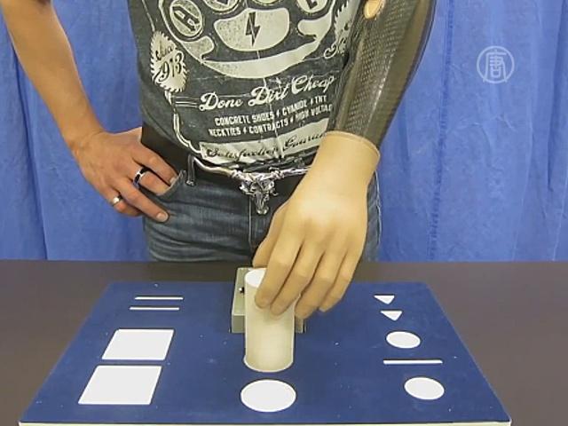 Врачи создали бионическую руку, управляемую мыслью