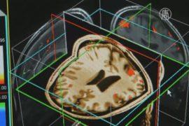 Учёные исследуют, как мозг реагирует на боль
