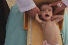 Дети в Сирии всё больше недоедают
