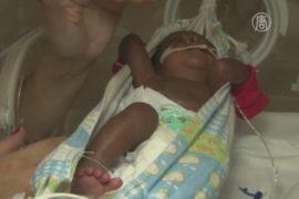 В Бразилии недоношенных детей помещают в гамаки