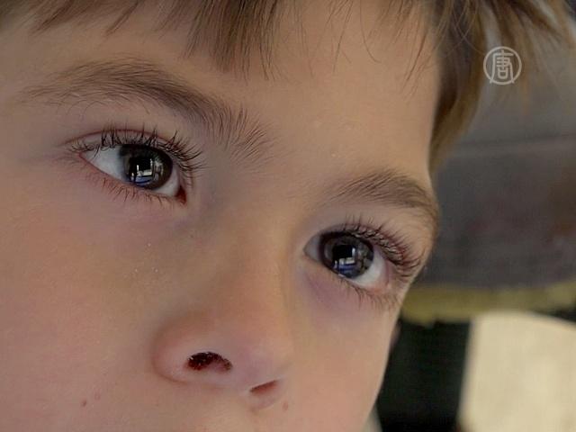Дети-инвалиды общаются при помощи движения глаз