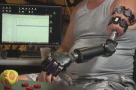 Искусственной рукой управляют при помощи браслета