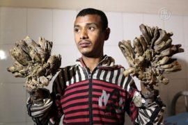 В Бангладеш прооперировали «человека-дерево»