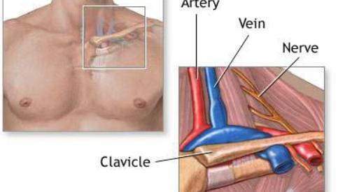 Операции на сонных артериях