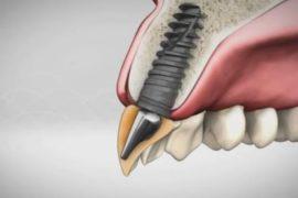 Alpha Bio имплантаты это крепкие и здоровые зубы