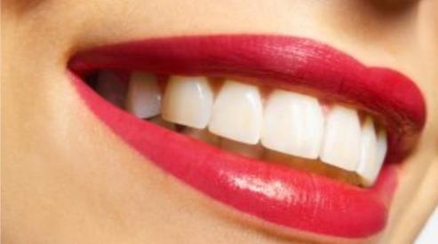 Как вернуть своей улыбке красоту